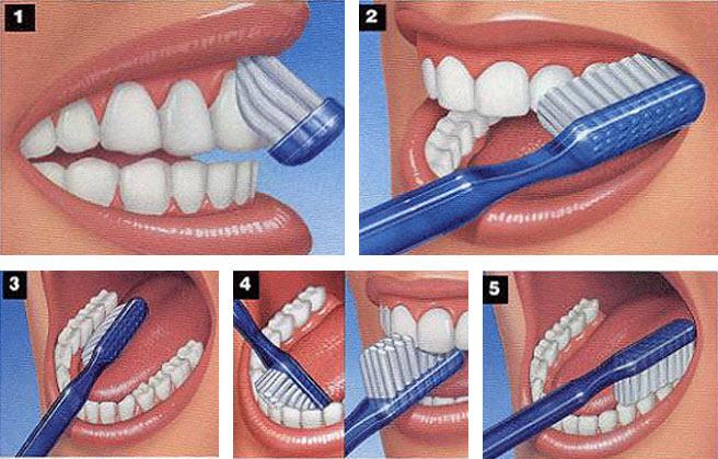 Aktivni ugalj za zube koliko cesto